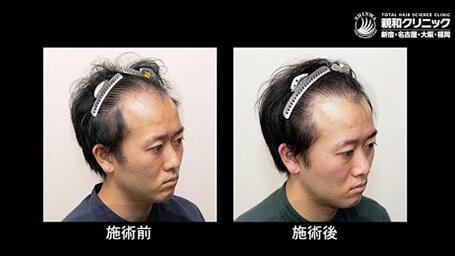 じゅ しん 親和 く 治療 クリニック 薄毛